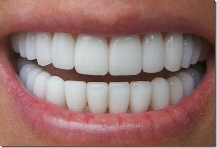 l'alignement des dents
